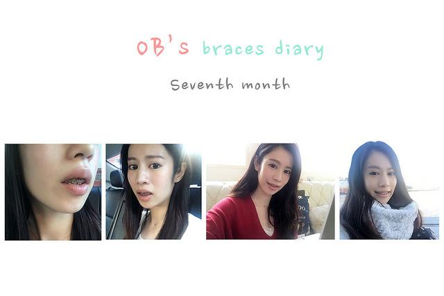 Braces7th